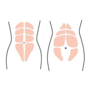 透過古法紥肚讓分離的腹直肌恢復